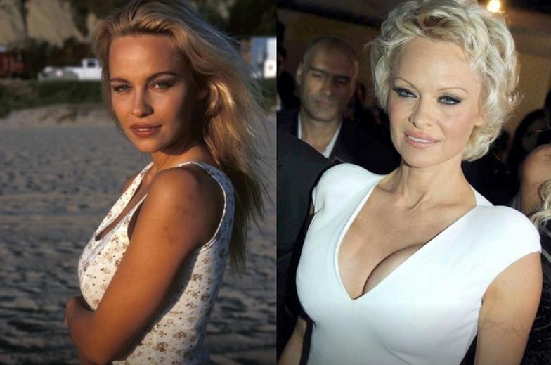 Pamela Anderson rifatta