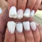 Le unghie a forme di denti sono la nuova terrificante moda
