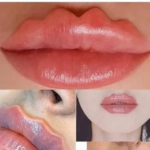 Le labbra del diavolo, la nuova moda shock della chirurgia estetica