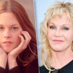 10 celebrità che si sono rifatte le labbra