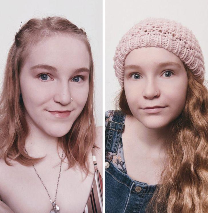 Più di 20 ragazze che hanno deciso di sottoporsi a un intervento di chirurgia plastica e hanno dimostrato che non ci sono limiti quando si tratta di perfezione