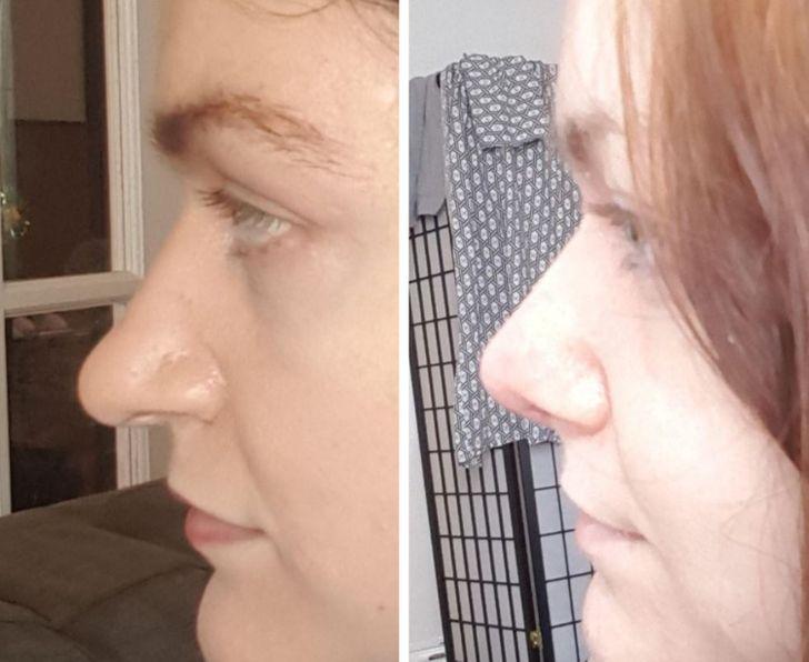 17 persone che hanno subito un intervento di chirurgia plastica e ora hanno un aspetto completamente diverso